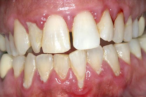 Traitement laser assist pour les dents d chauss es - Symptomes fausse couche sans saignement ...
